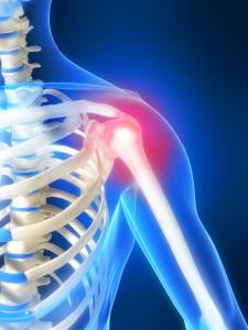Smerte i skulder illustrasjon